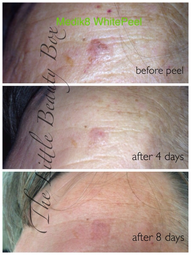 WhitePeel - Before & after