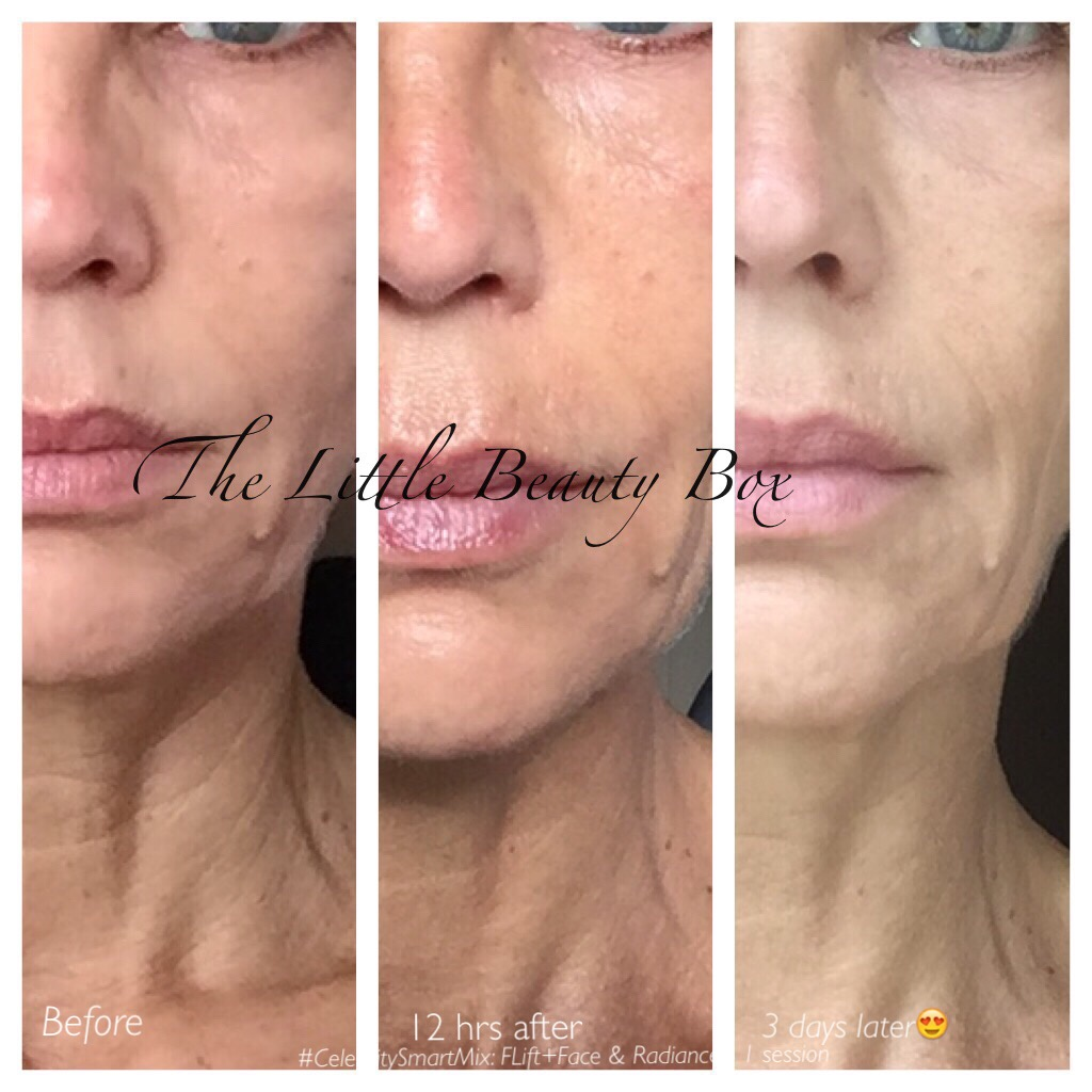 Fusion Meso Therapy Collagen Induction Nappage Amp No